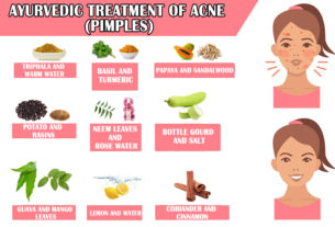 AYURVEDIC TREATMENT OF ACNE (PIMPLES)