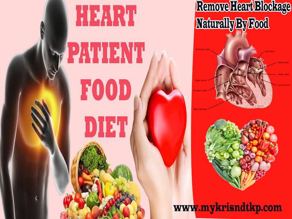 Remove Blockage Fm Heart Arterie Vein Natural Without Surgery By Food