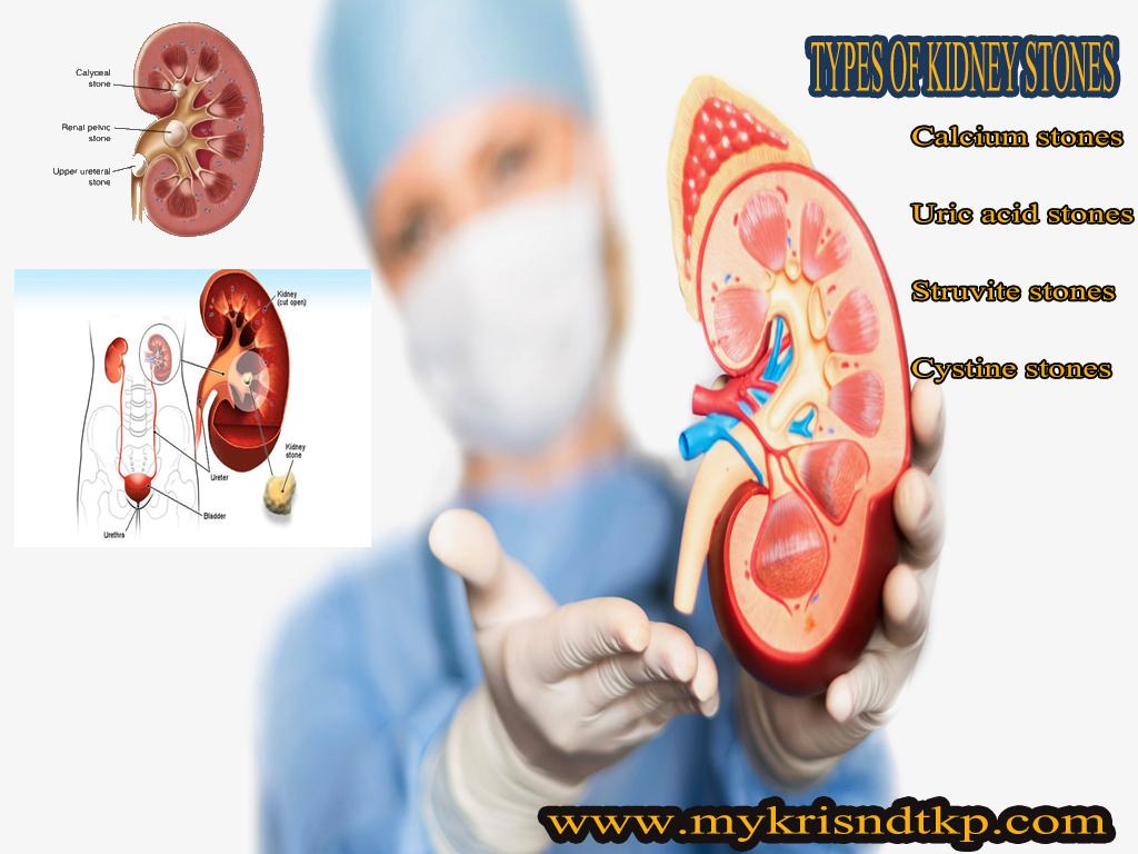 kidney stone causes and types